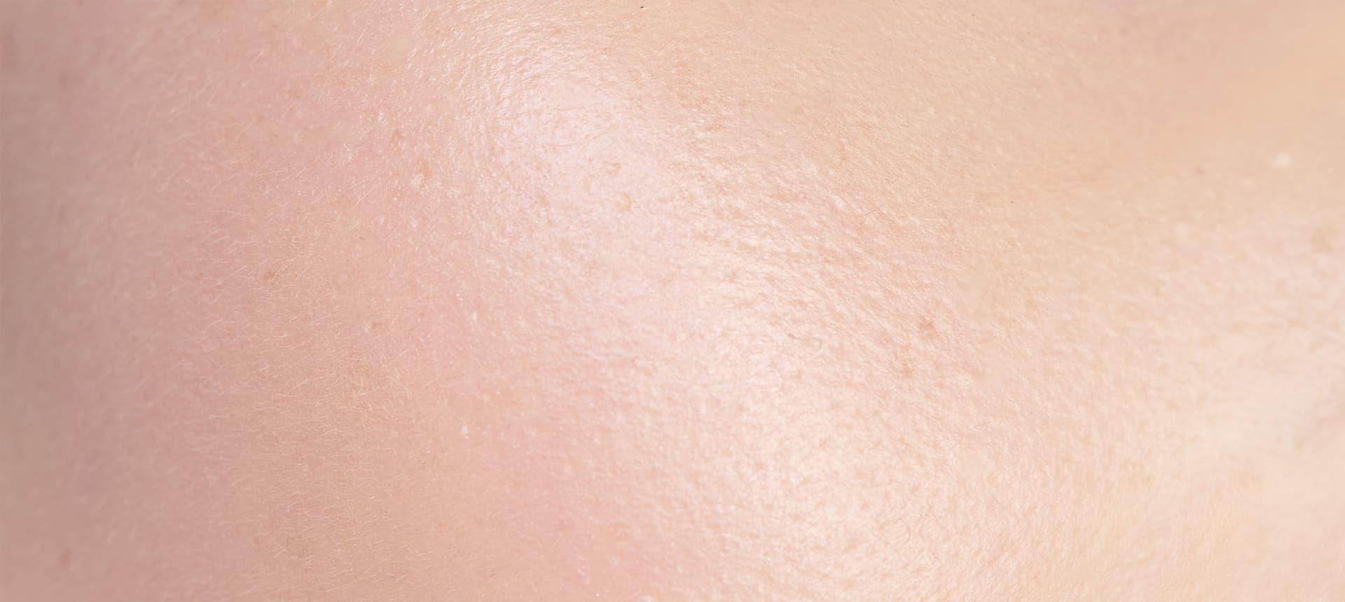 Exposome impacts: The effects on the skin