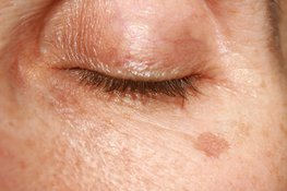 How to remove age spots?