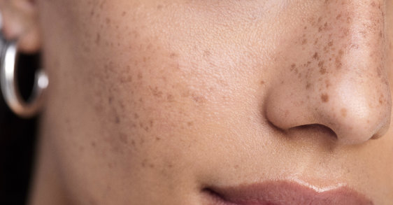The best skincare protocol to strengthen and protect the skin barrier during the COVID-19 period