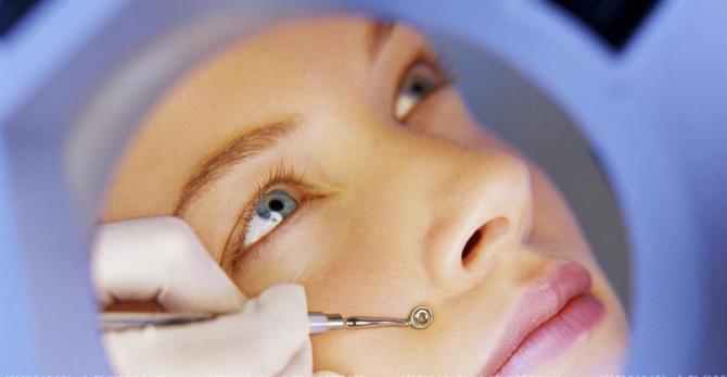 Blackhead basics: removal tools vs. acne-fighting ingredients